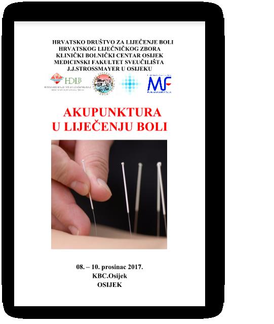 Akupunktura u liječenju boli